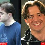 Brendan Fraser hair plugs 14858