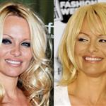 Pamela Anderson before and after face March 2009 35839