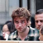 Robert Pattinson bloody and bruised on NYC set of Remember Me 43203