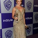 Toni Collette burnt face at the Golden Globes 2010  53486